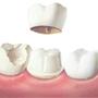 Thumb_90_dental-crown