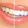 Thumb_90_teeth-whitening-options-small