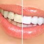 Thumb_90_teeth-whitening-options-small